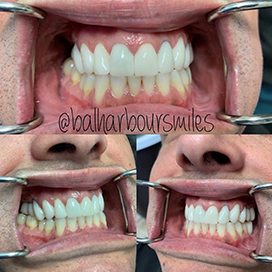 Surfside Smile Makeover