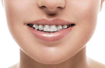 Taking Care Of Your Clear Aligners