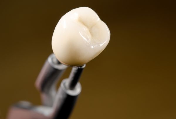 Will My Dental Crown On Implant Match My Other Teeth?
