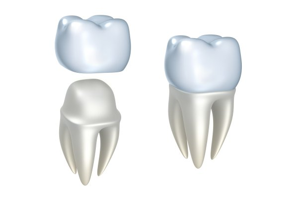 Reasons To Consider CEREC Crowns